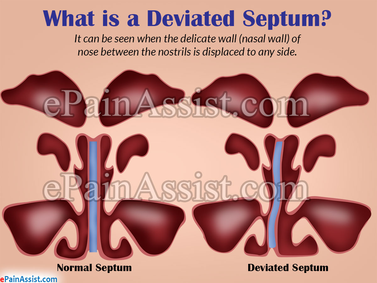 What is Deviated Septum or Septal Deviation?