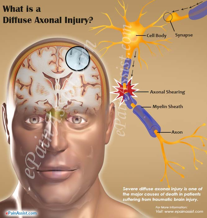 What is a Diffuse Axonal Injury