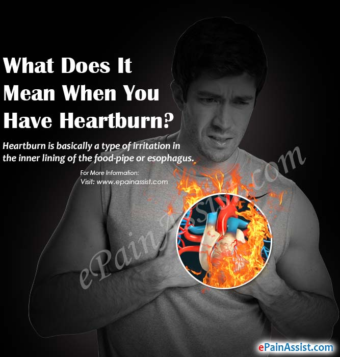 What Does It Mean When You Have Heartburn?