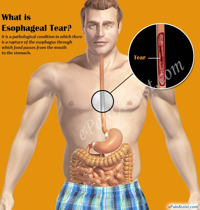 What is Esophageal Tear