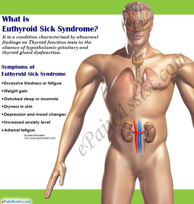 What is Euthyroid Sick Syndrome