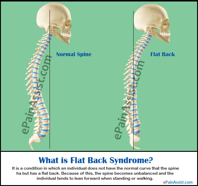 What Is A Flat: Flat Back Syndrome