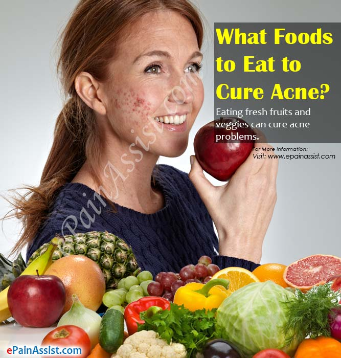 What Foods to Eat to Cure Acne?