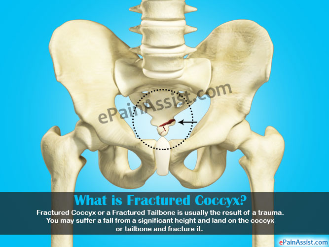 Fractured Coccyx