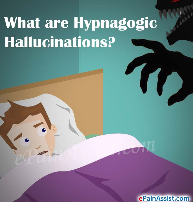 What are Hypnagogic Hallucinations?