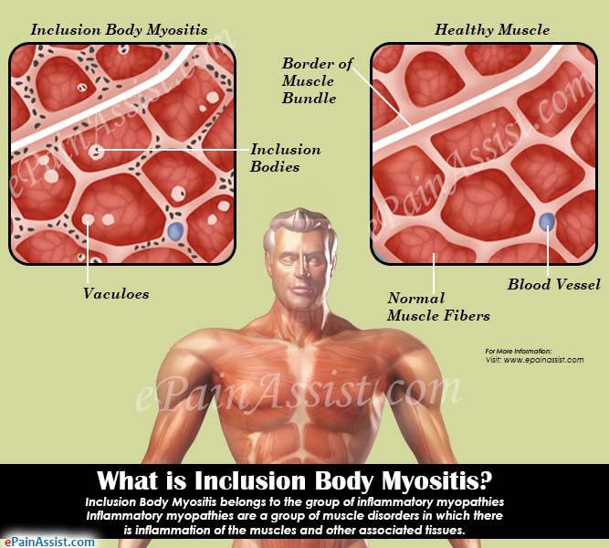 What is Inclusion Body Myositis