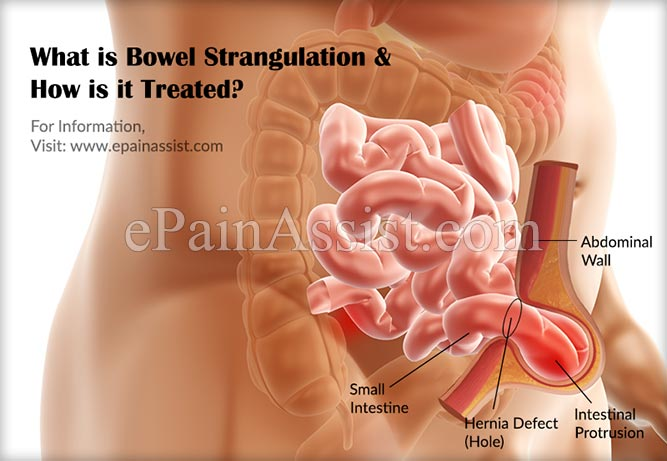 What is Bowel Strangulation & How is it Treated?
