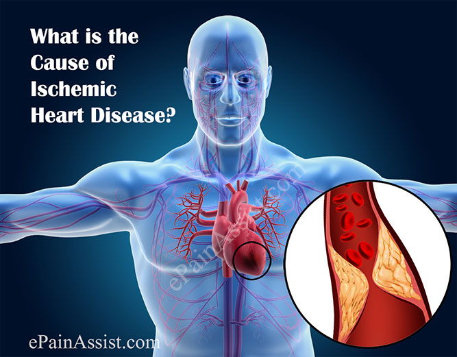 What is the Cause of Ischemic Heart Disease?