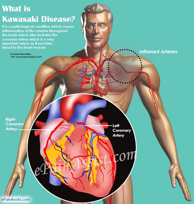 What is Kawasaki Disease
