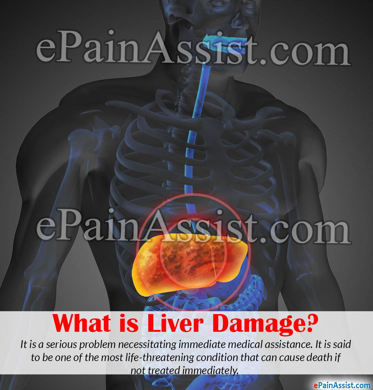 What is Liver Damage or Liver Failure