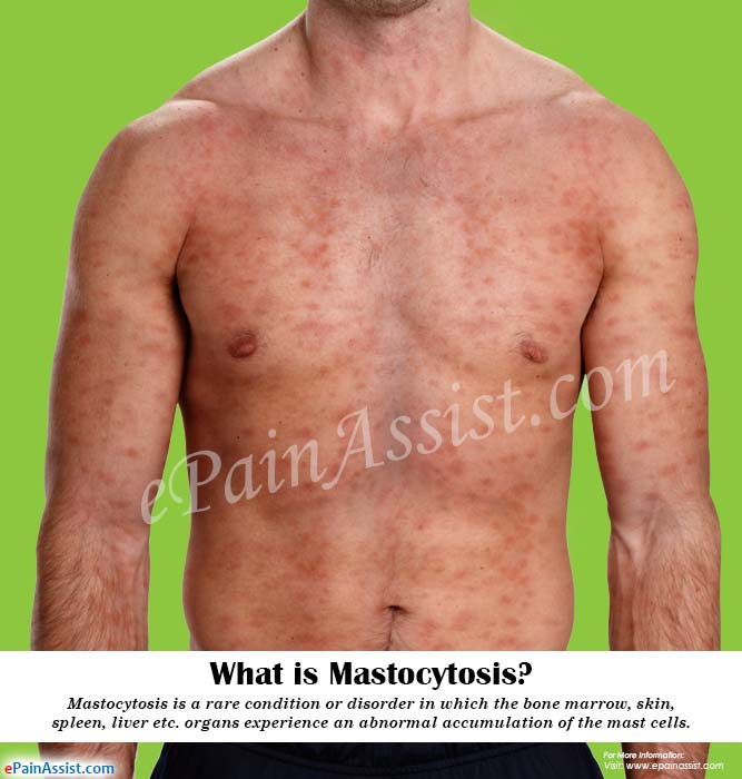 What is Mastocytosis