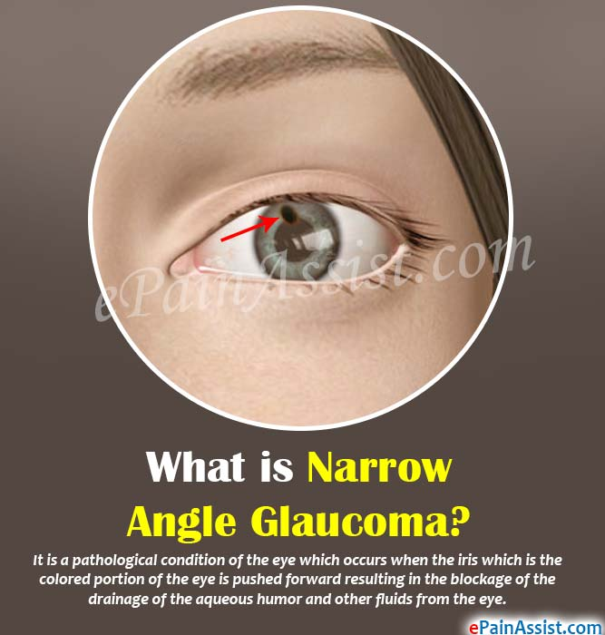What is Narrow Angle Glaucoma?