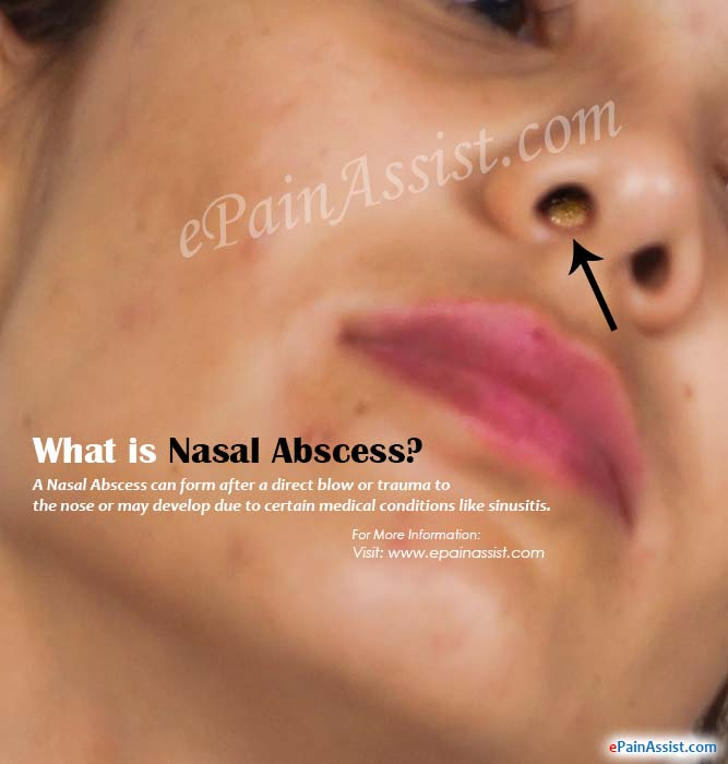What Is Nasal Abscess How Is It Treated