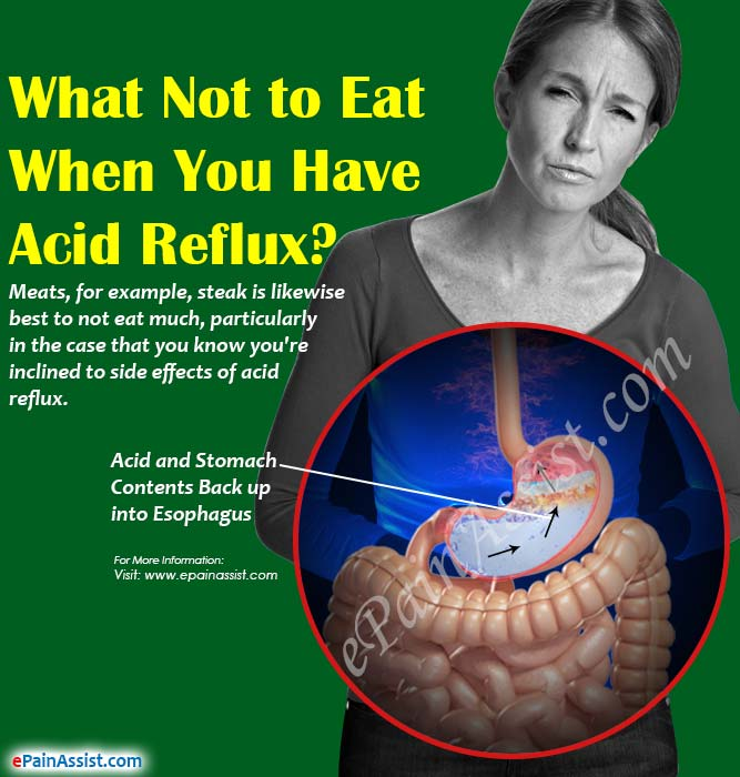 Acid Reflux Foods Not Eat
