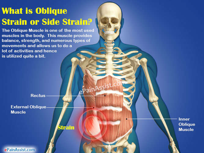 Oblique Strain or Side Strain|Causes|Symptoms|Treatment|Recovery Period