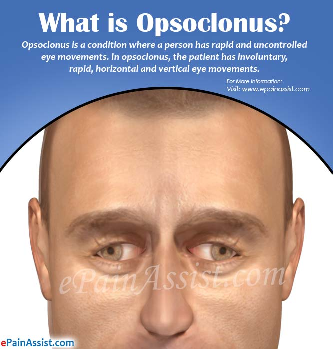 What is Opsoclonus
