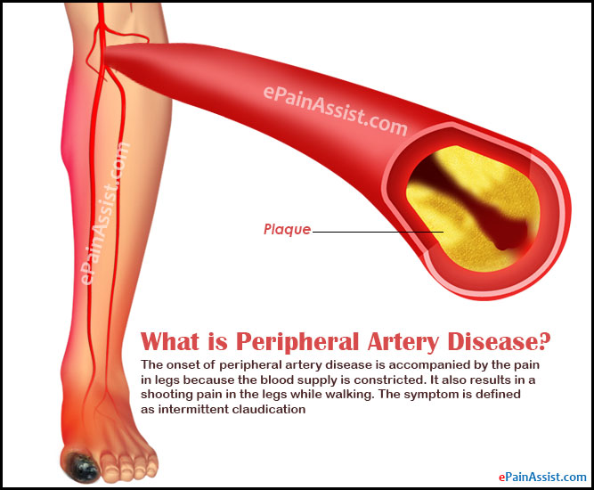What is Peripheral Artery Disease