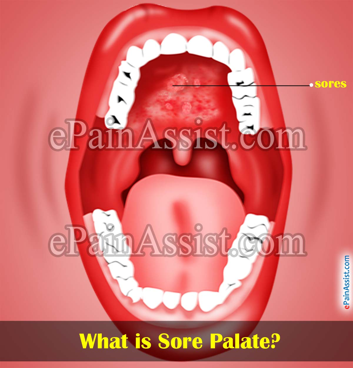 What is Sore Palate or Sores on Roof of Mouth