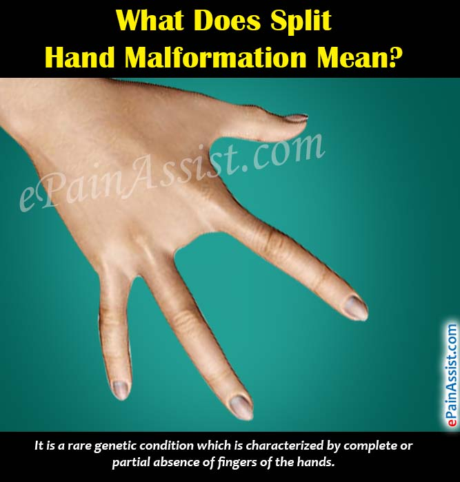 What Does Split Hand Malformation Mean?