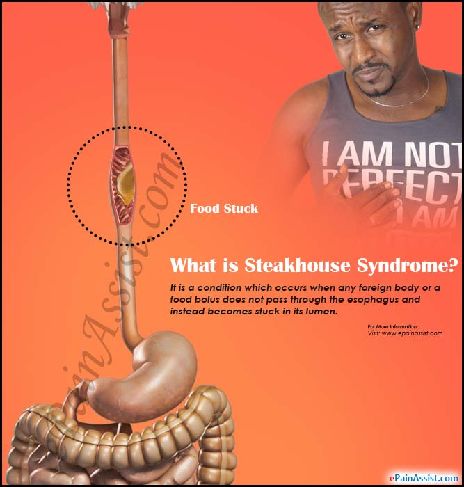 What is Steakhouse Syndrome