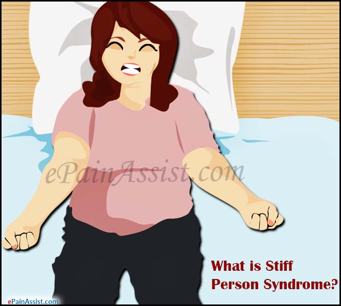 What is Stiff Person Syndrome