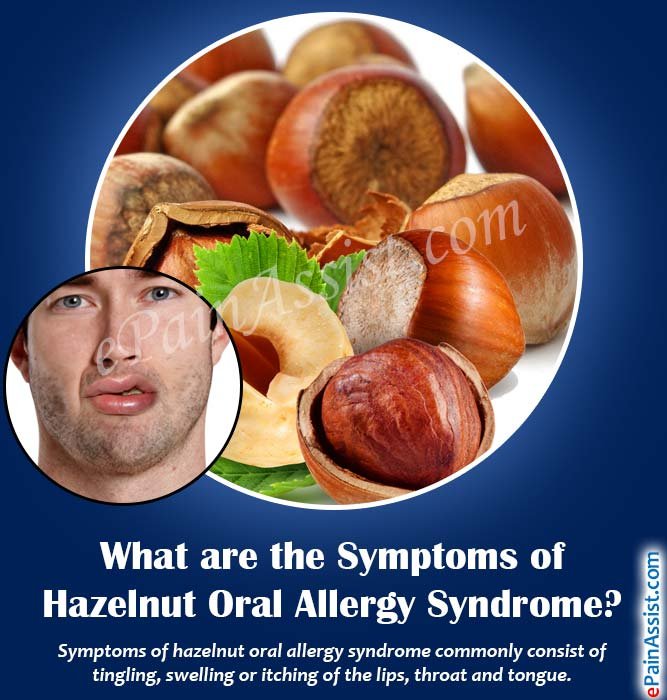 What are the Symptoms of Hazelnut Oral Allergy Syndrome