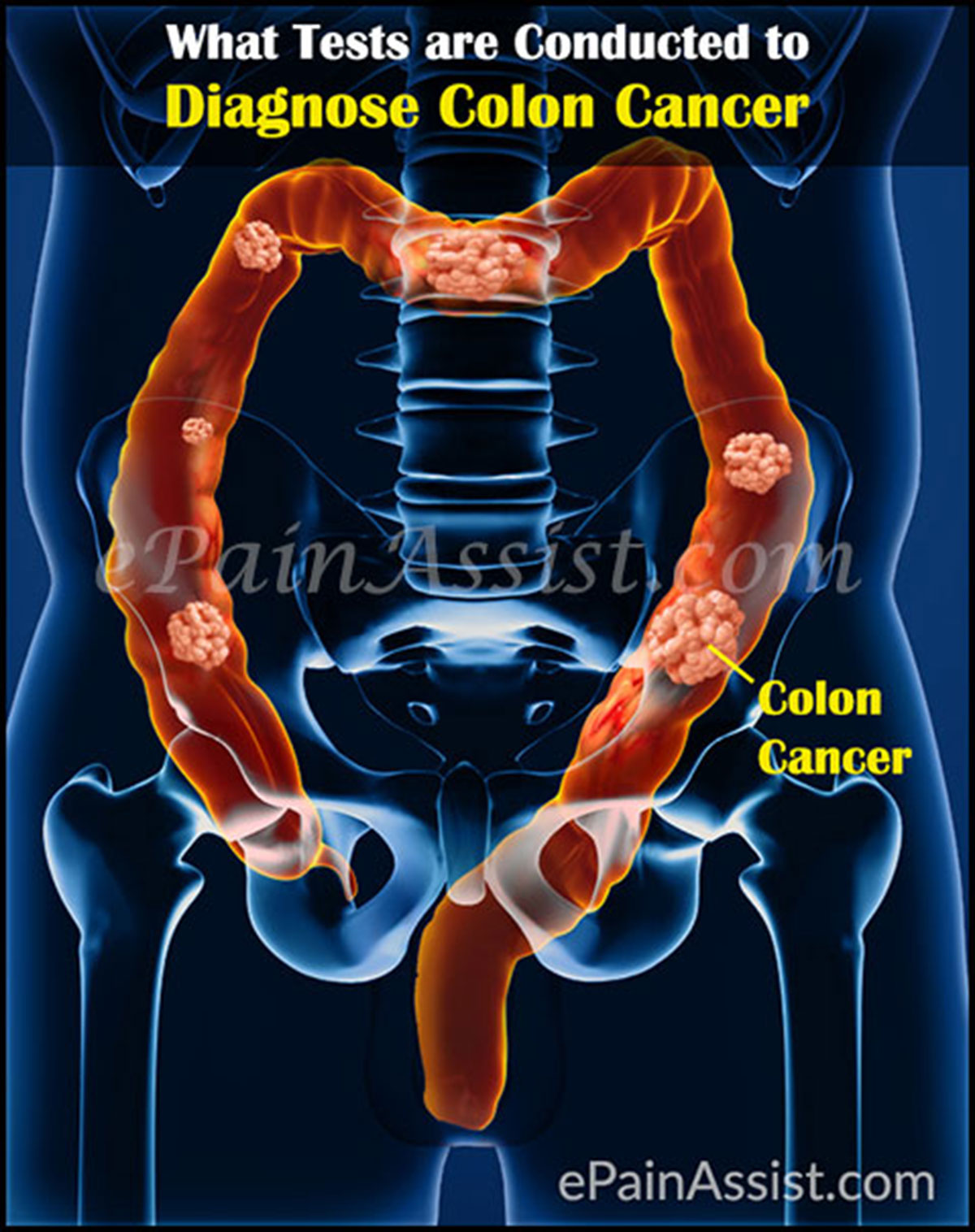 What Tests are Conducted to Diagnose Colon Cancer