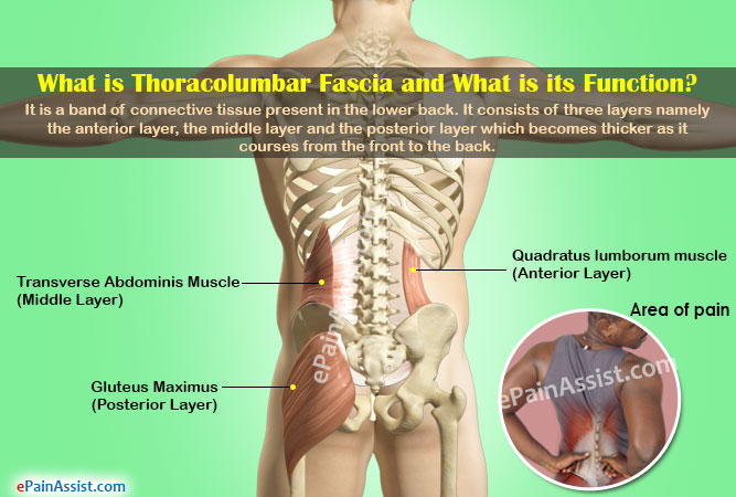 Thoracolumbar Fascia Paincausessymptomstreatmentexerciseprevention