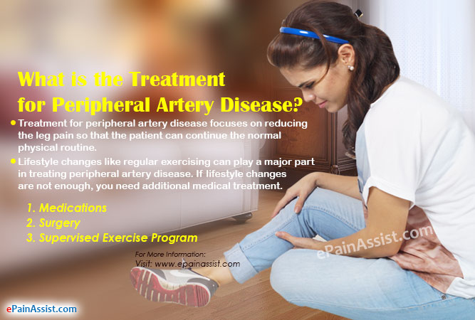 What is the Treatment for Peripheral Artery Disease
