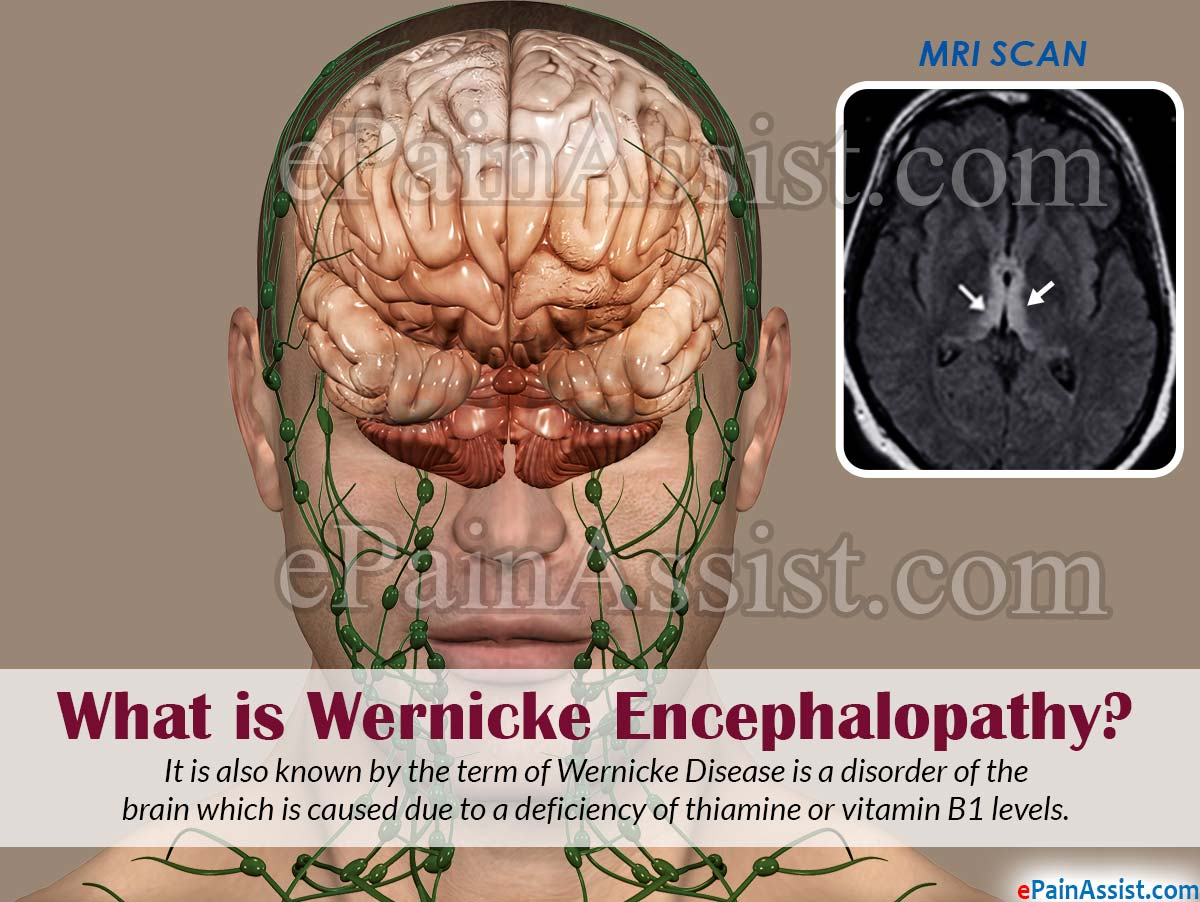 What is Wernicke Encephalopathy