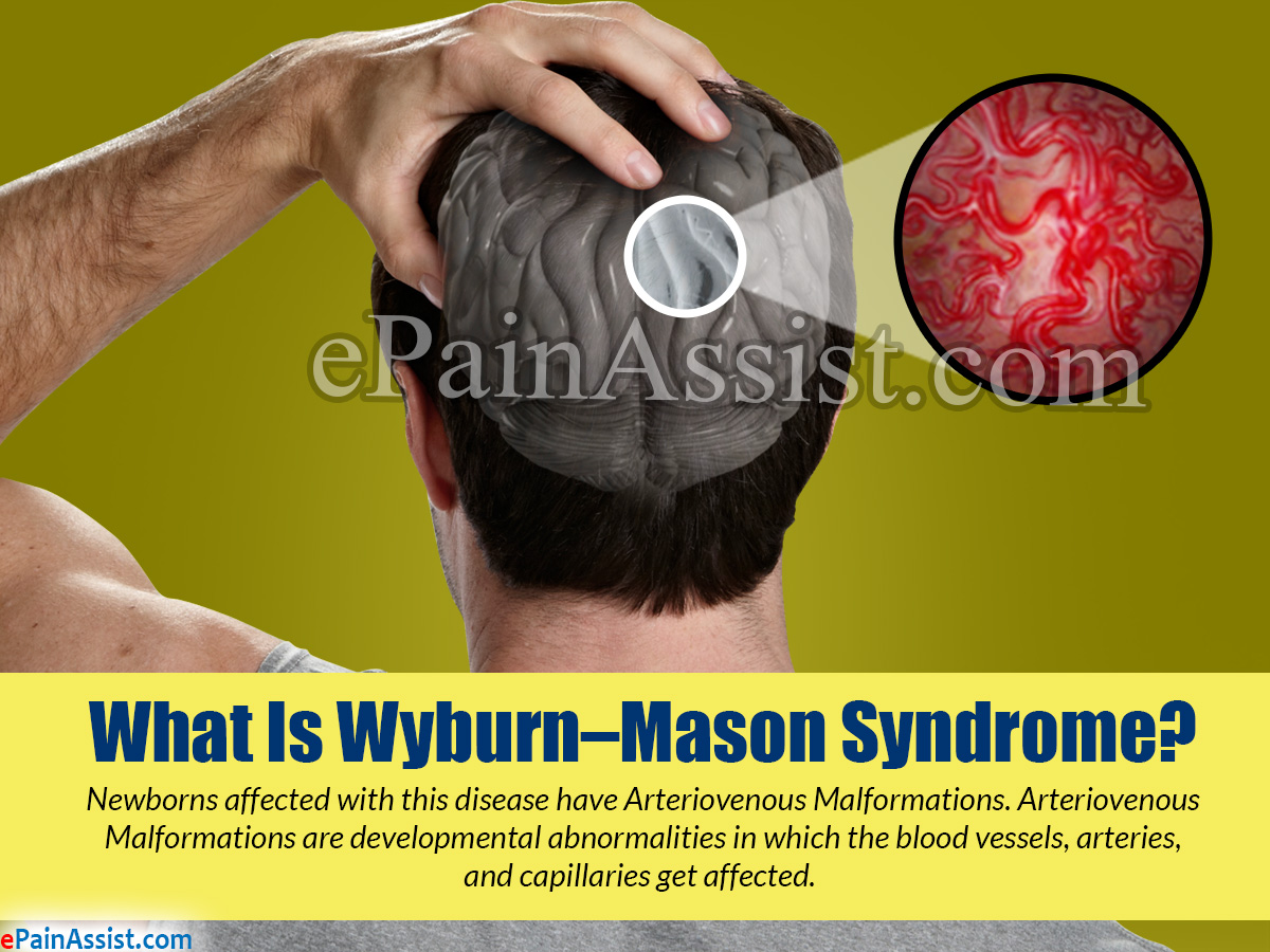 What is Wyburn-Mason Syndrome