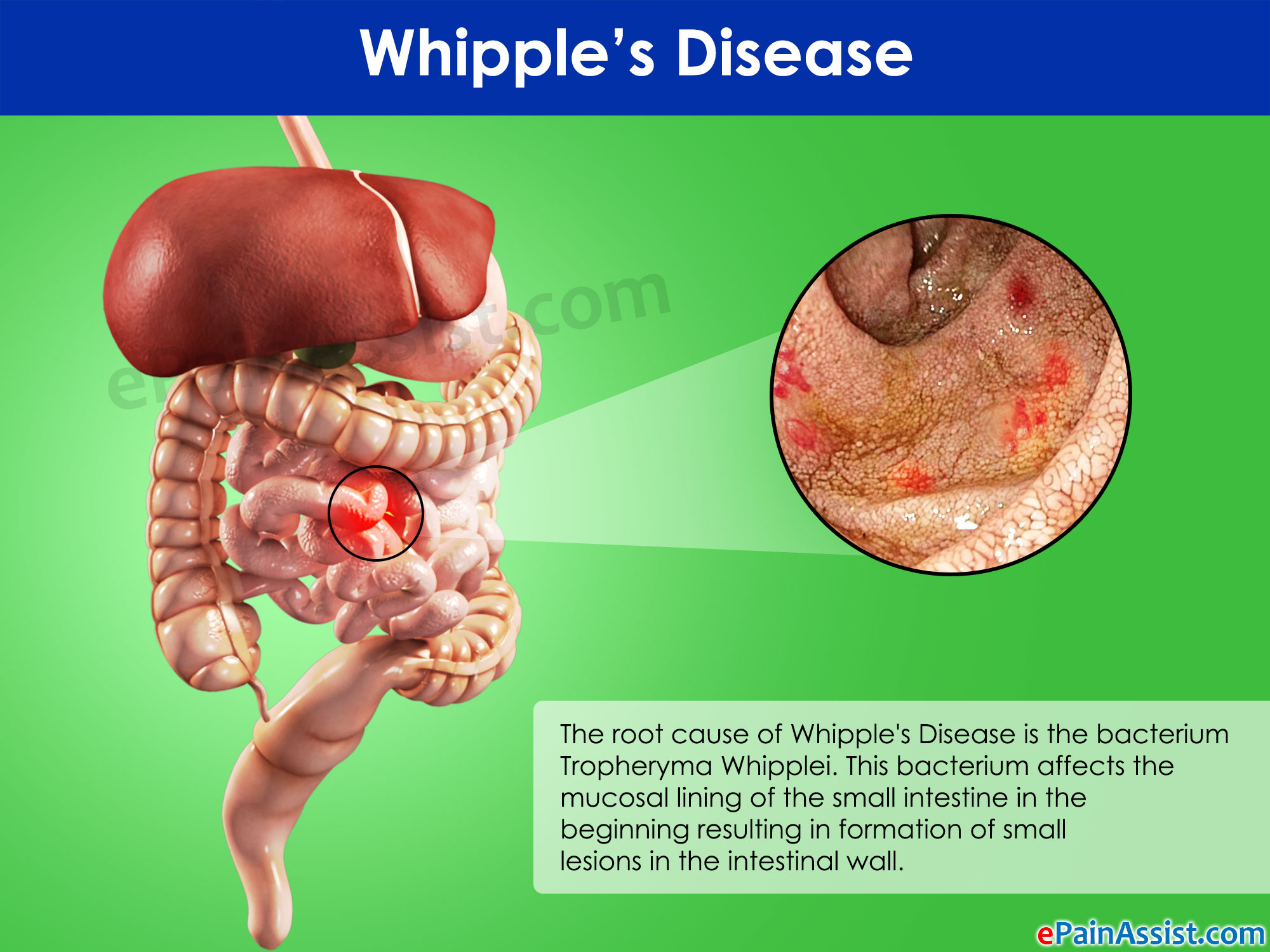 Symptoms and treatment of the disease