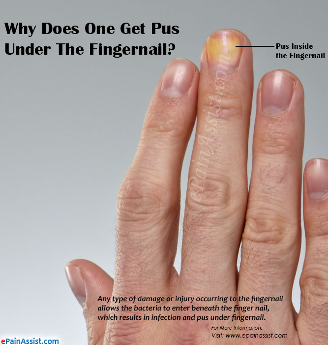 What Are Other Associated Symptoms Of Pus Under Fingernail
