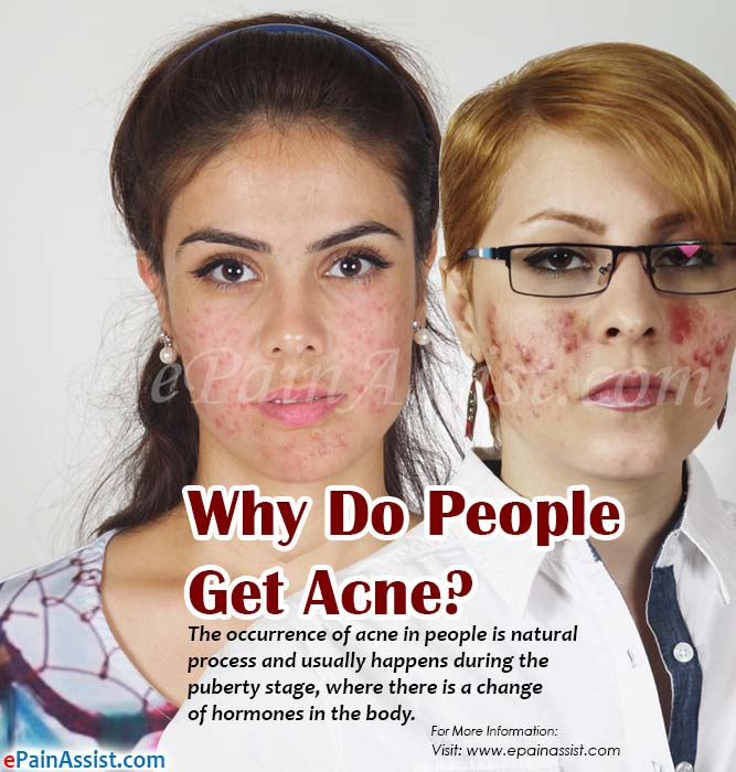 Why Do People Get Acne?
