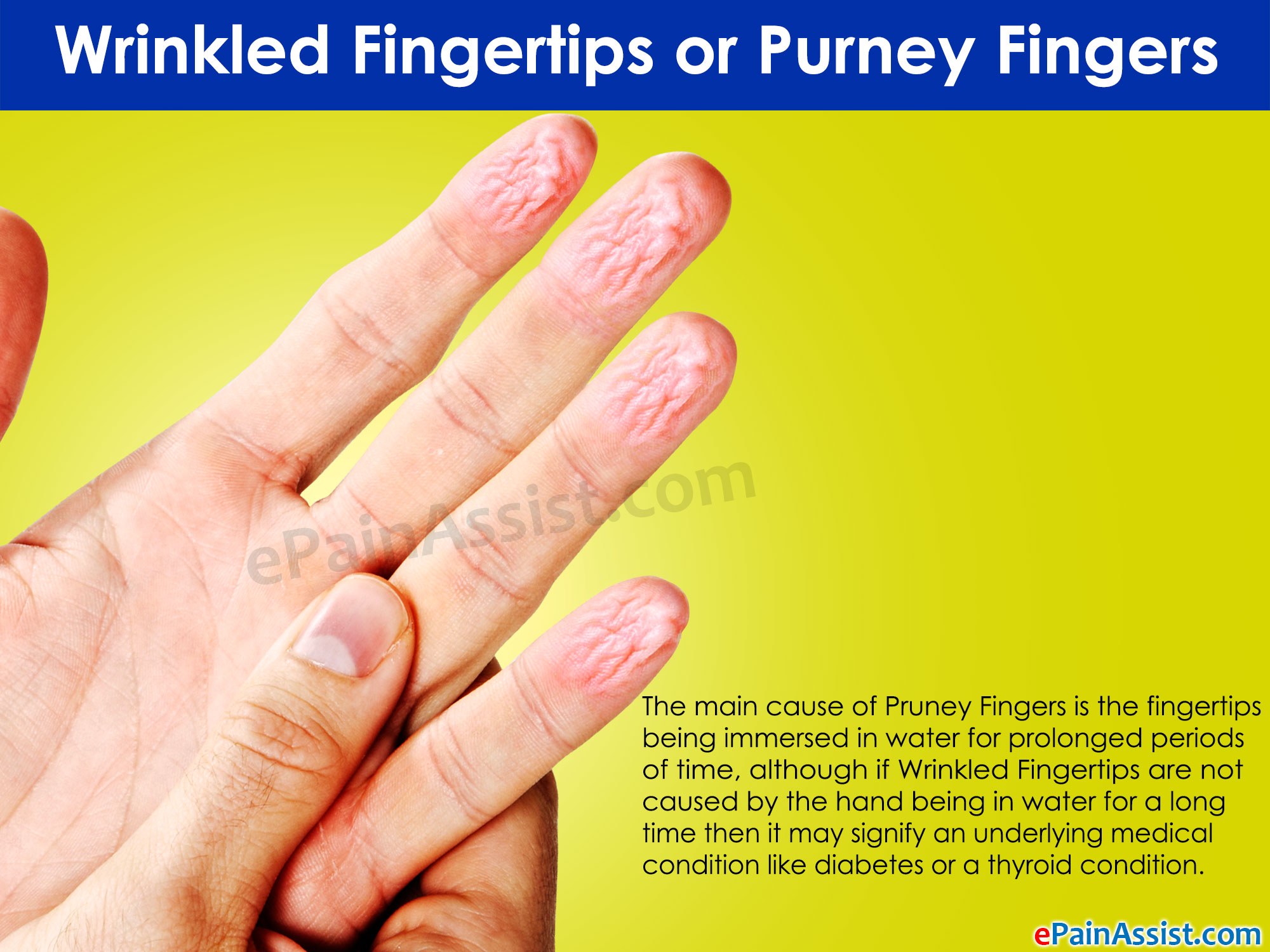 Why finger tips grow numb: causes and prevention 26