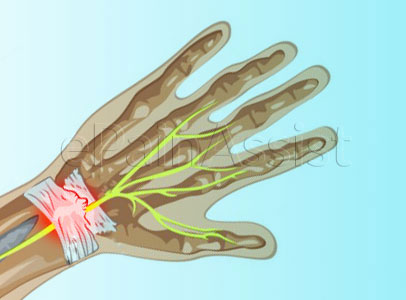 Injury or tearing of the cartilage, ligaments and joint capsule of the wrist results in Wrist Sprain.