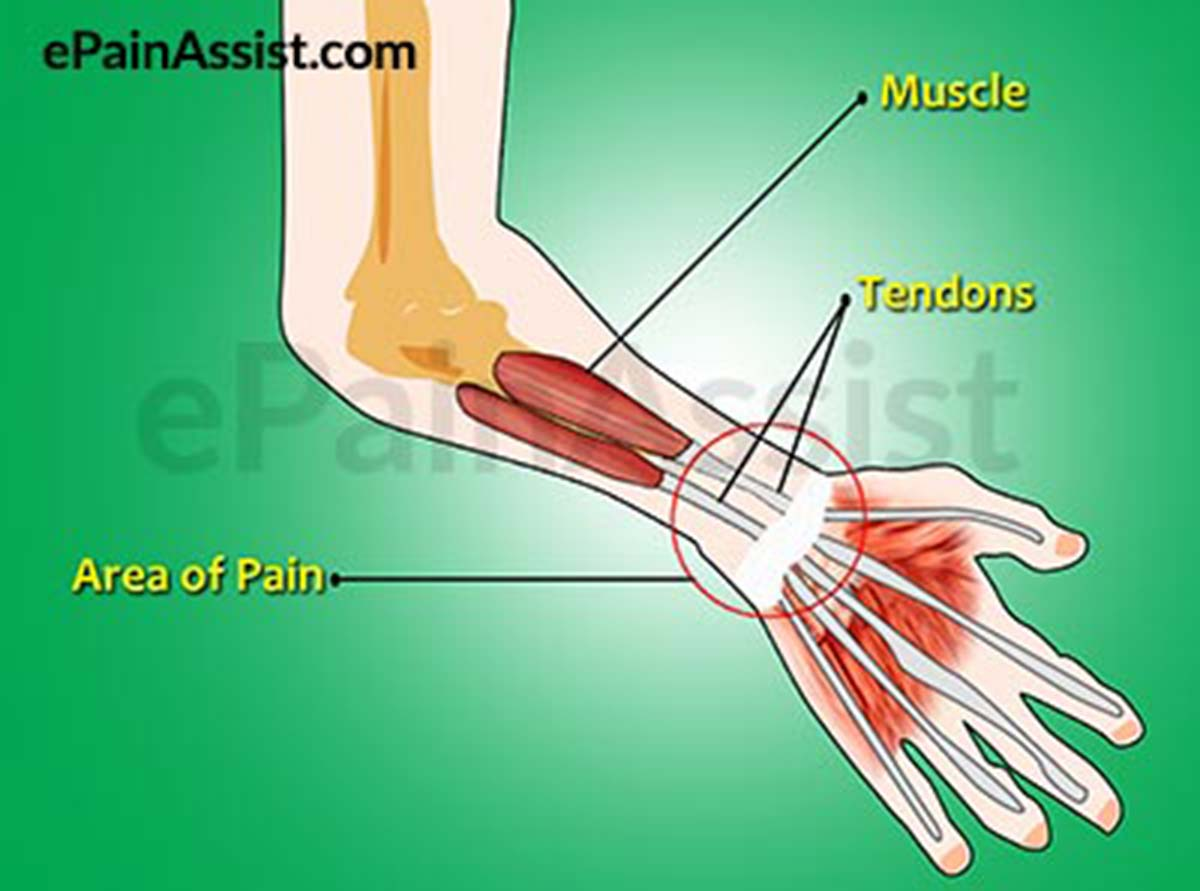 Joint Tendonitis