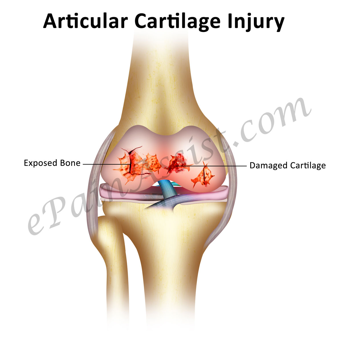 Image result for This cartilage template will heal your damaged bones