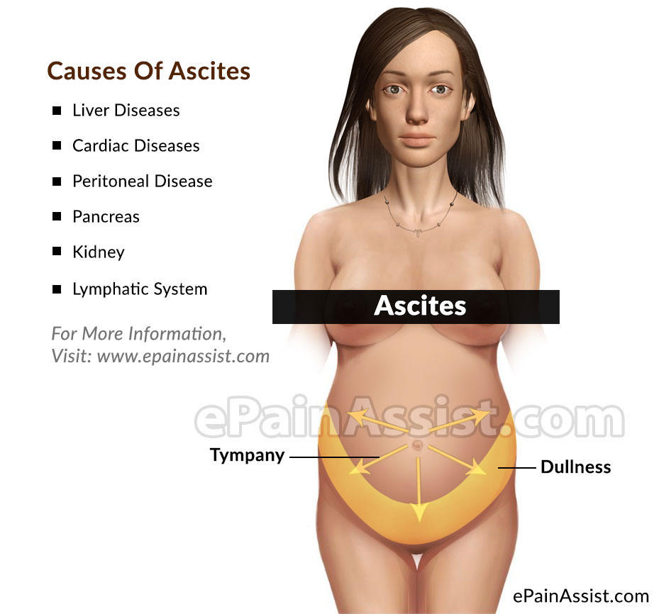 Ascites: Causes, Risk Factors, Symptoms, Diagnosis, Treatment, Complications