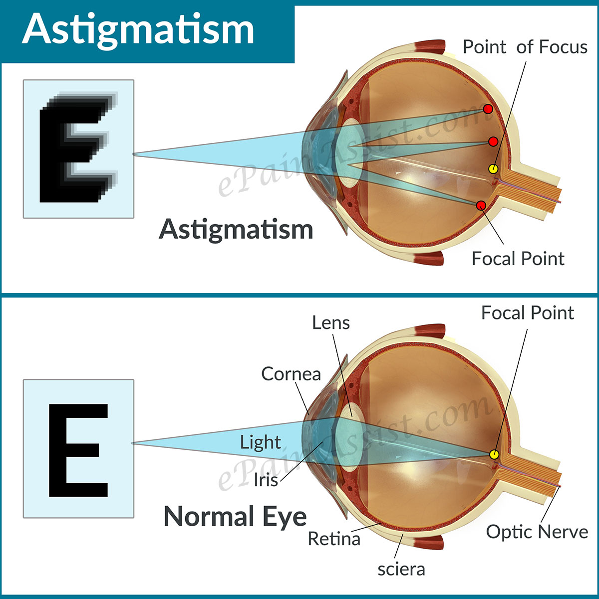 Astigmatism Headaches With Glasses