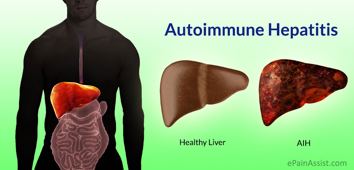 Autoimmune Hepatitis or AIH
