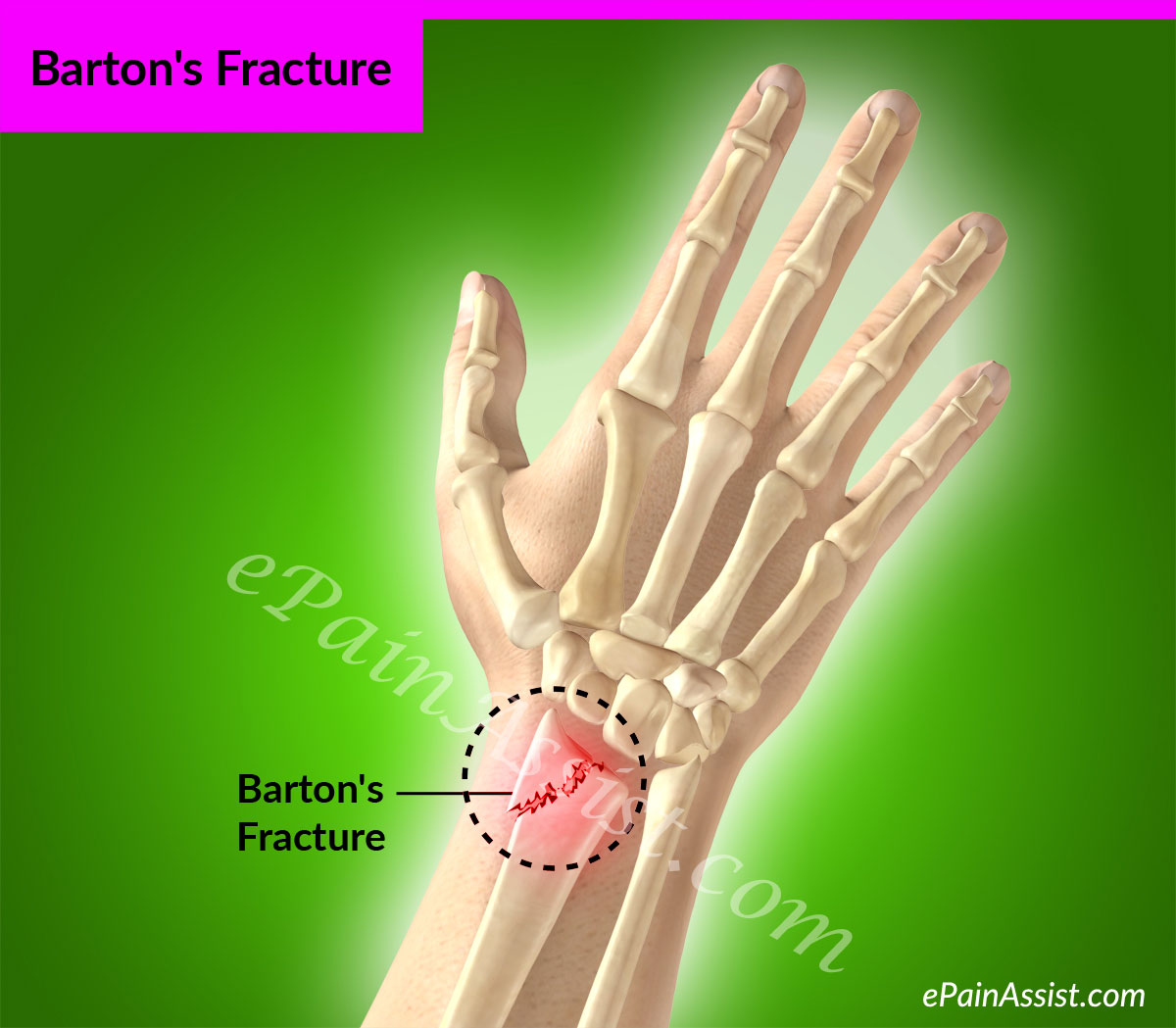 Bartons Fracturecausessignstreatmentptexercisesinvestigations