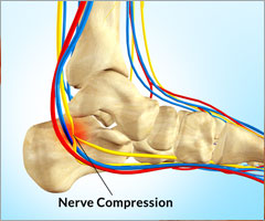 Heel Pain Due To Baxter's Nerve Compression