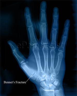 Bennett's Fracture|Causes|Signs|Treatment|Exercises ...