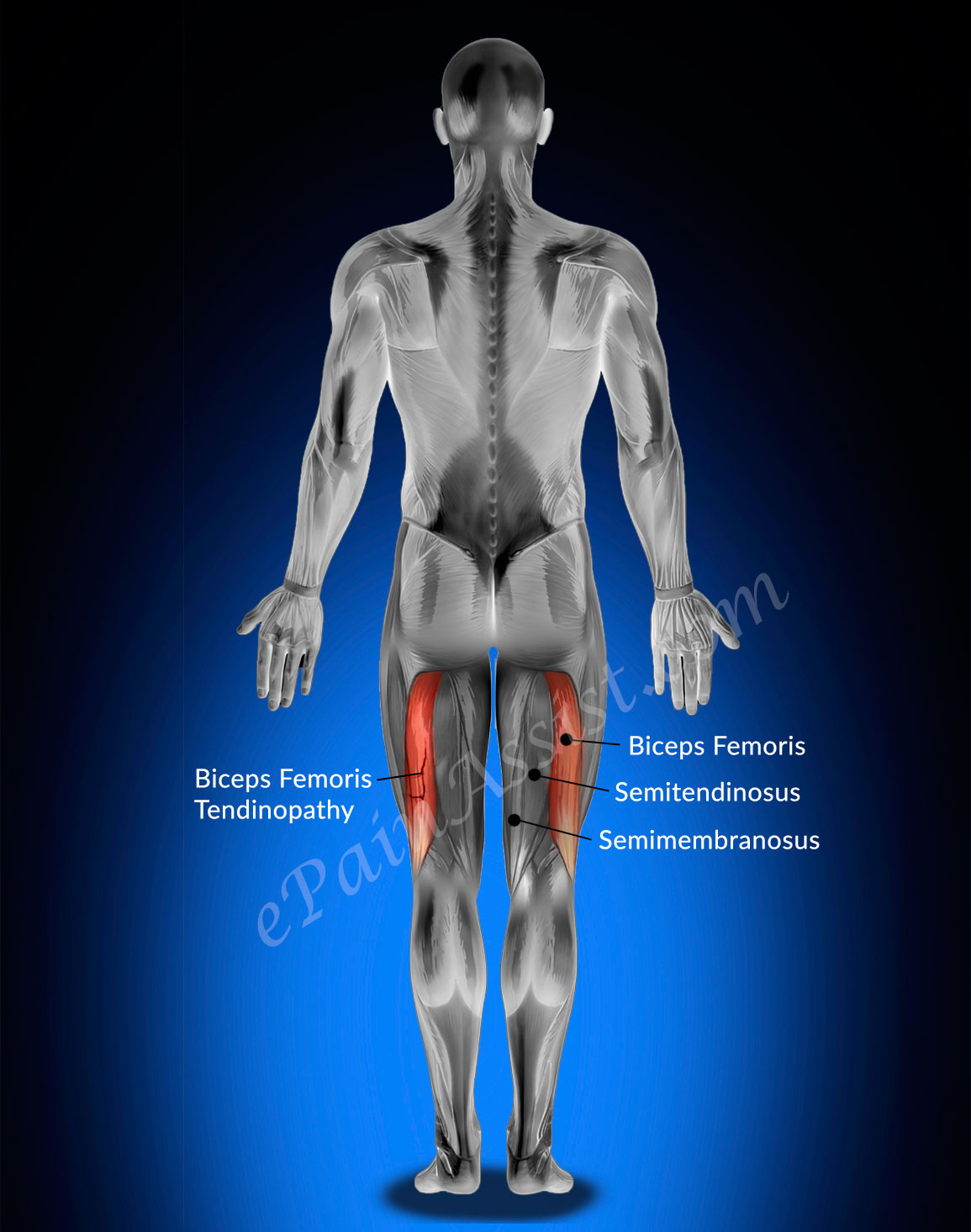 Biceps Femoris Tendinopathy