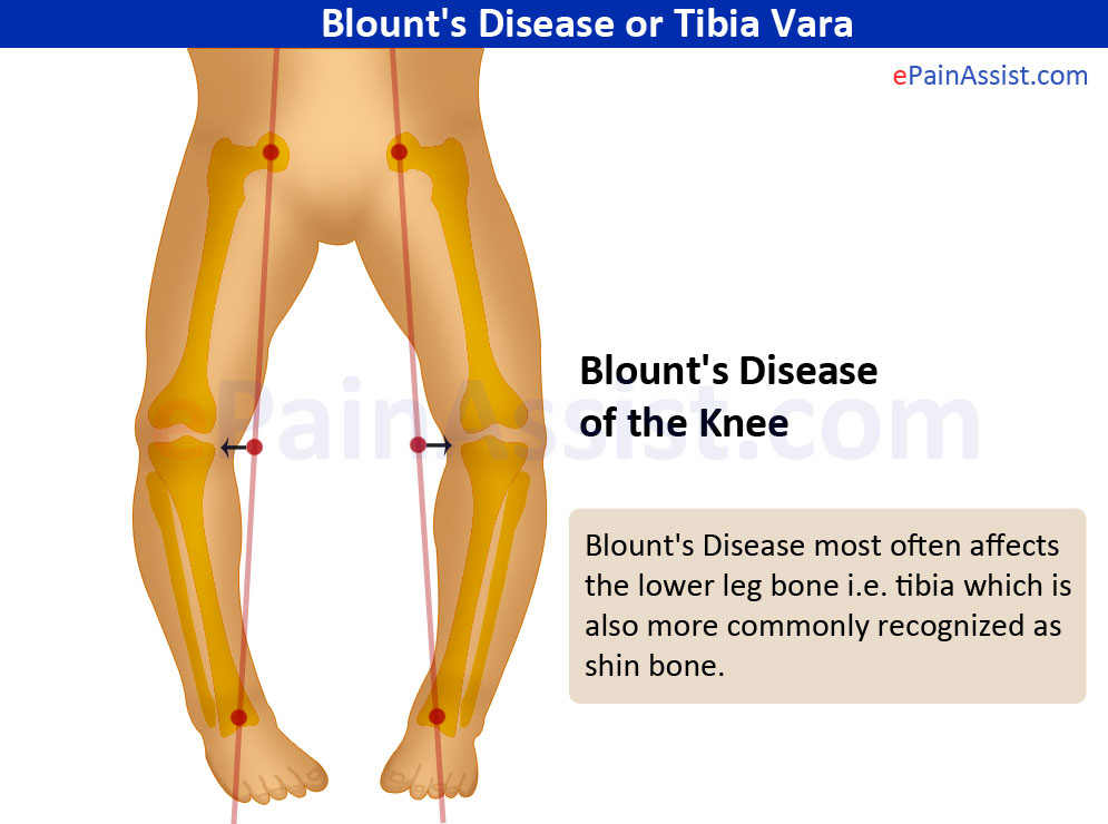 Blount's Disease or Tibia Vara