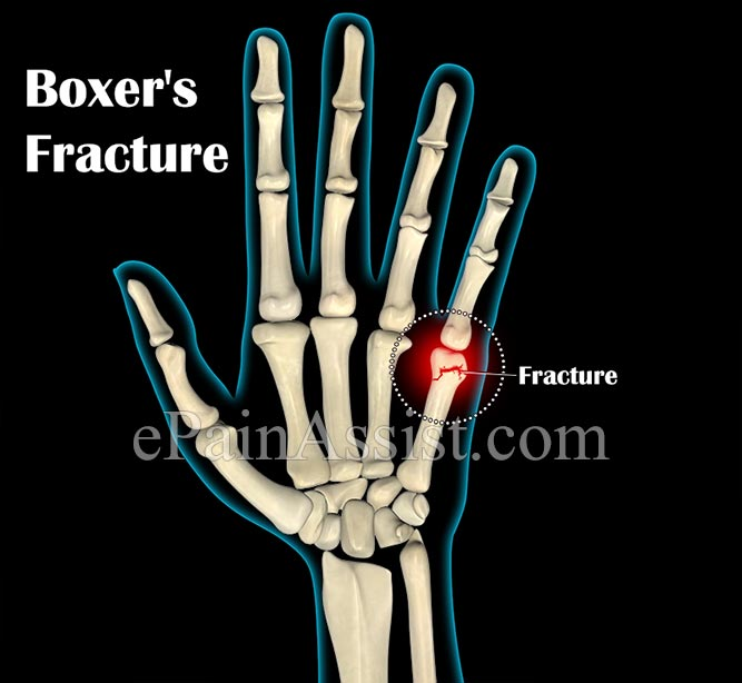 Signs and Symptoms Boxer's Fracture