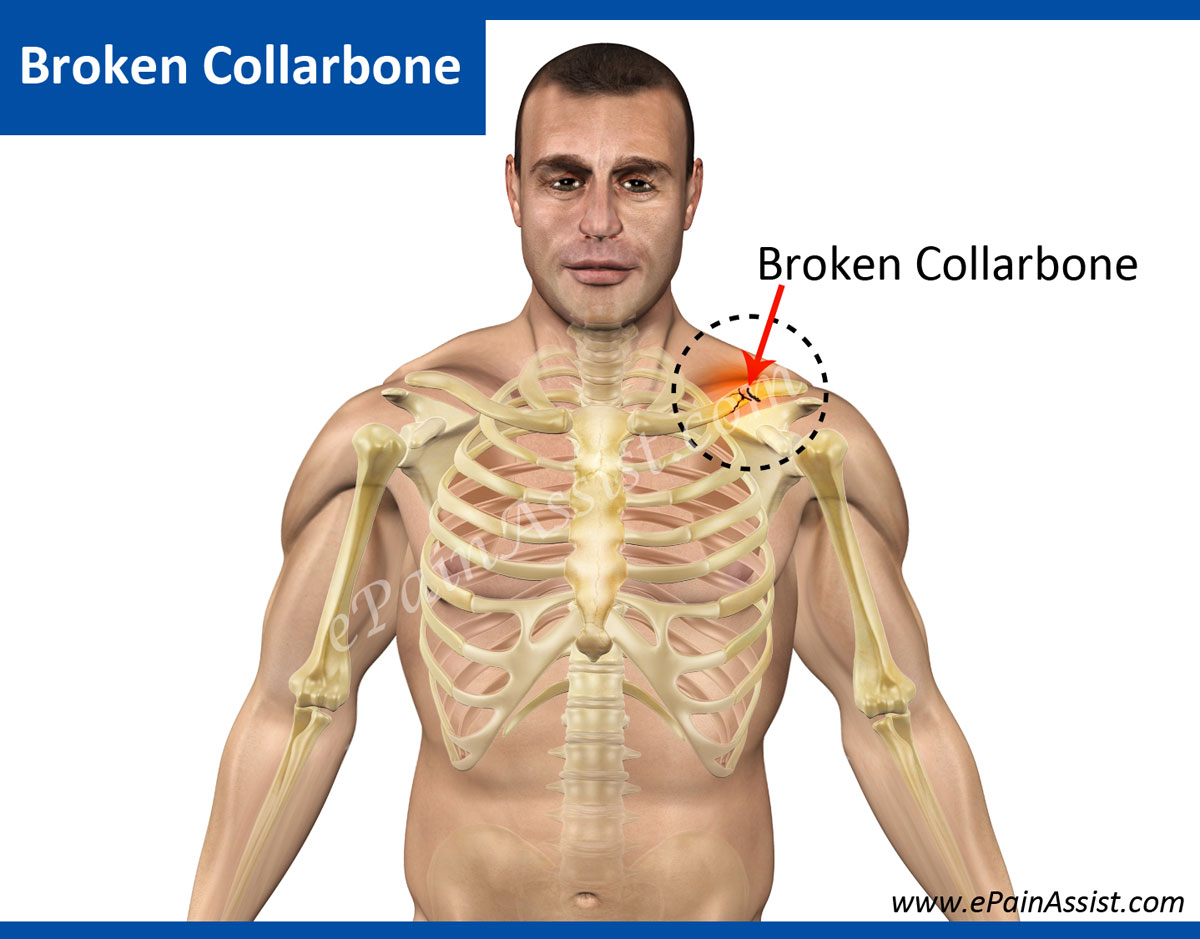 Broken Collarbone Or Clavicle Fracture Causes Symptoms