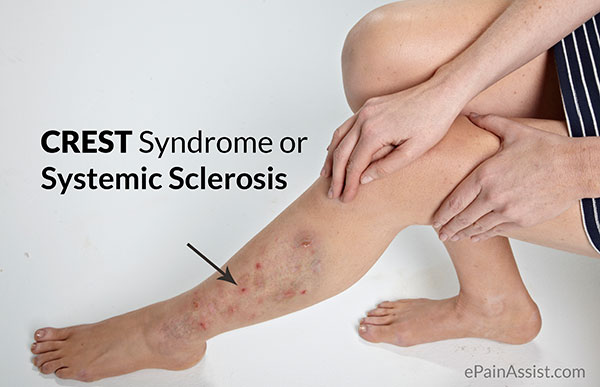 CREST Syndrome or Systemic Sclerosis