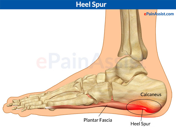 Image result for spurs bone
